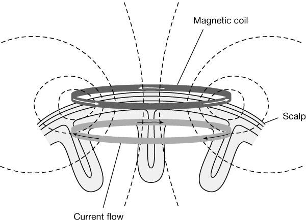 نقش القاء الکترومغناطیسی در TMS