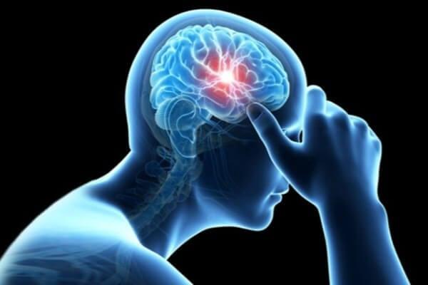 متخصص مغز و اعصاب خوب